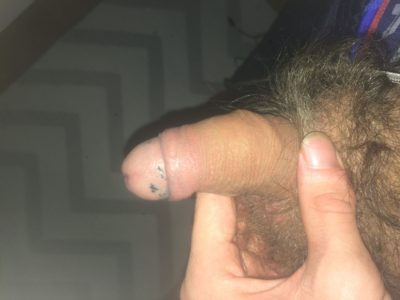 Rate My Small Dick Rate My Tiny Penis
